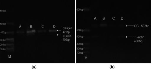 Reverse transcriptase-polymerase chain reaction (RT-PCR) results of collagen I and osteocalcin mRNA between the two groups a collagen I b Oc. a The detection results of RT-PCR of cell type I collagen mRNA expression. b The detection results of RT-PCR of cells osteocalcin mRNA expression