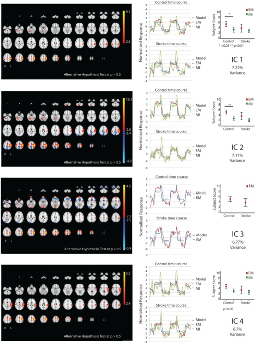 The figures show the involvement of each IC across the whole brain with a standard threshold of p > 0.5 (alternative hypothesis test) and the variance it accounts for out of the total explained variance. In four stroke patients, the images were flipped so that the left hemisphere is always contralateral to executed movement/motor imagery. The left hemisphere equates to the ipsilesional hemisphere. The scales show the transformed z-score, orange is activation, and blue is deactivation. The normalized time course response is shown for each task and the full model fit (full model fit = blue, executed movement = red, and motor imagery = green). The mean subject scores with standard error bars are shown for each task and differences highlighted (executed movement = red, motor imagery = green). The time course and subject score for each task are shown.