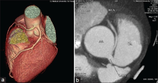 (a) Right coronary artery (RCA) and left coronary artery origin from the ascending aorta above the left sinus of Valsalva together, (b) RCA passed between the aorta and pulmonary artery before reaching the right atrioventricular groove, and ostial occlusion due to aortic expansion.