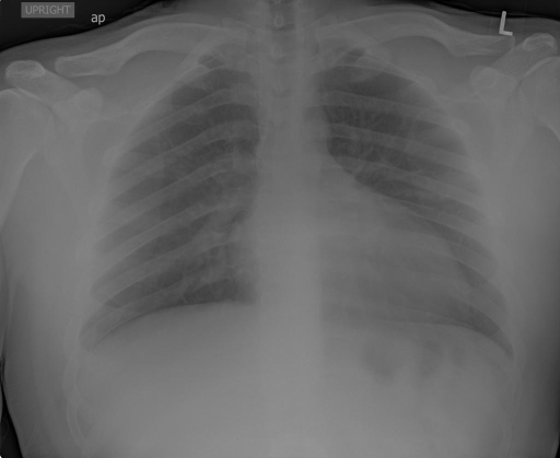 Xray Chest PA and Lateral .