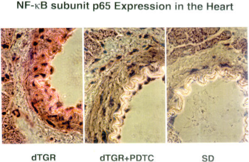 Immunohistochemical analysis of the subunit p65 of NF-κB in the heart of dTGR show a increased expression in the endothelial cells and smooth muscles cells in the vessel wall, which was partially reduced by PDTC.