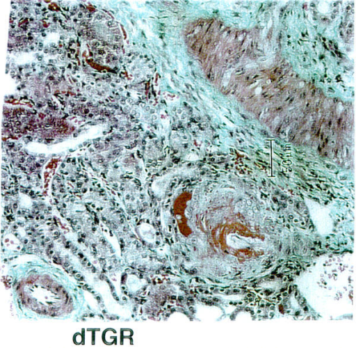 Representative immunohistochemical photomicrograph of PAI-1 and Fibronectin in the heart of dTGR. PAI-1 and fibronectin expression were increased in the perivascular space and adventitia of dTGR compared to SD.