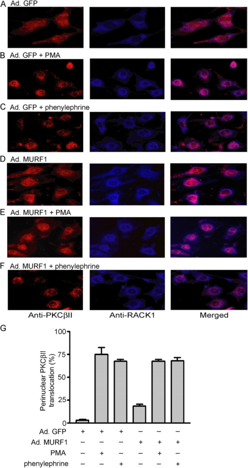 MURF1 does not alter PE- and PMA-induced translocation of PKCβII from cytosol to the perinuclear region in NRVM. NRVM were infected with Ad.GFP (A–C) or Ad.MURF1 (D–F) for 24 h in serum-free medium followed by induction with PE or PMA for 15 min. The cells were fixed and incubated with anti-RACK1 (blue) and anti-PKCβII (red) for 2 h. (G) Quantitative determination of perinuclear PKCβII staining under the indicated conditions.