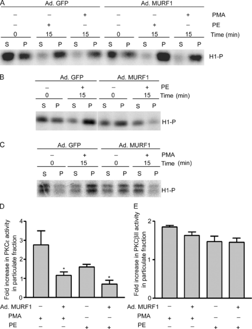 MURF1 inhibits adrenergic agonist-induced PKCε activity (but not PKCβII activity) in the particulate fraction of NRVM. (A–C) After infection with Ad.GFP or Ad.MURF1 for 24 h in serum-free medium, NRVM were induced with PE or PMA for 15 min and subjected to subcellular fractionation. The detergent-soluble (S) and particulate (P) fractions were immunoprecipitated with anti-PKCβII (A) or anti-PKCε antibody (B and C) and were subjected to in vitro kinase assays using histone H1 and γ[32P]ATP. (D and E) The results from densitometric scanning of kinase assays from three independent experiments are presented as means ± SEM of PKCε (D) or PKCβII (E) activity in the particulate fraction compared with soluble fraction. *, P < 0.05 compared with control.