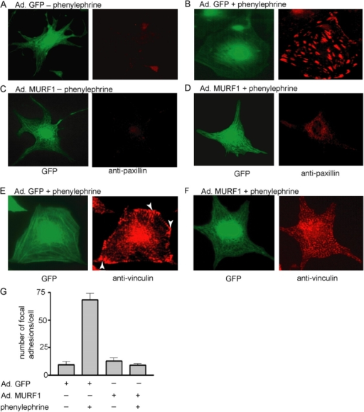 MURF1 inhibits focal adhesion formation in NRVM. NRVM were infected with Ad.GFP (A, B, and E) or Ad.MURF1 (C, D, and F) for 24 h in serum-free medium followed by induction with PE for 48 h (B and D). The cells were fixed in 3.7% formaldehyde followed by incubation with anti-paxillin (A–D) or anti-vinculin (E and F) antibodies. Arrows indicate focal adhesions. (G) Quantitative determination of paxillin-positive focal adhesions per cell under the indicated conditions.