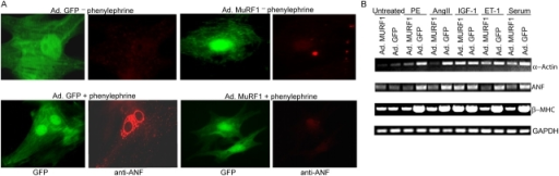 MURF1 inhibits adrenergic agonist-induced cardiac gene expression. (A) NRVM were infected with Ad.GFP or Ad.MURF1 for 24 h followed by induction with PE for 48 h. The cells were followed by immunostaining with rabbit anti-ANF antibody (red). (B) After adenoviral infection for 24 h in serum-free medium, cells were induced with PE, Ang II, IGF-1, endothelin-1 (ET-1), and serum for 24 h. mRNA was isolated and subjected to RT-PCR using primers specific to skeletal α-actin, ANF, β-MHC, and GAPDH.
