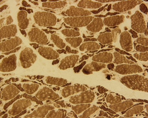 Muscle biopsy (ATPase stain) of the right thigh showing diffuse Type II fiber atrophy and focal myofiber degeneration.