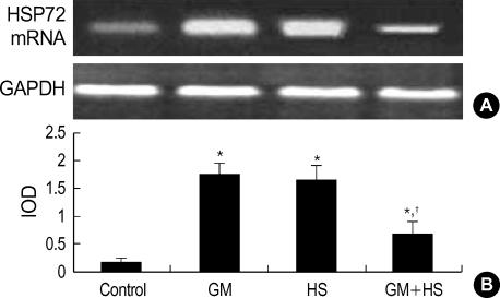 Expression of HSP72mRNA in HK-2 cells. (A) RT-PCR analysis of HSP72 and GAPDH expression in HK-2 cells treated with medium only, HS, GM in 100 µg/mL and GM+HS, respectively, for 72 hr. (B) Quantification of HSP72 expression by densitometer. Values are mean±SD of measurements from separate HK-2 cell cultures. Number of experiments (n)=6. *p<0.01 vs. control, †p<0.01 vs. GM group at the same time point.