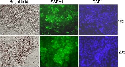 Continued proliferation and preferential accumulation of SSEA1-positive cells in old rat colonies derived from rat XEN-P cells.Two magnifications of a representative 16-days old colony (line RX1) are shown. Bright field (left), immunofluorescence (middle), and nuclear stain (right). Control omitting primary antibody was negative and is not shown.