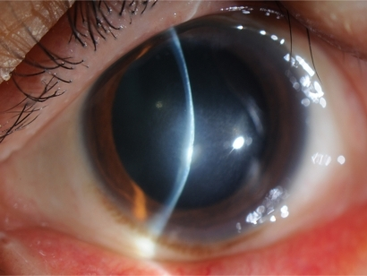 Slit Lamp Examination Shows The Remaining Stromal Opacity Of The Central  Cornea.