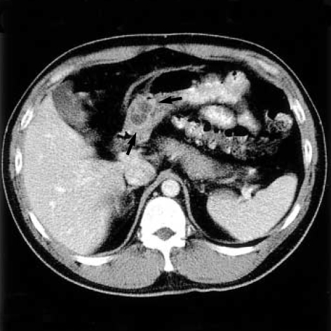 The abdominal CT reveals a well-demarcated multiseptate cystic mass (arrows) in the gastric antrum.