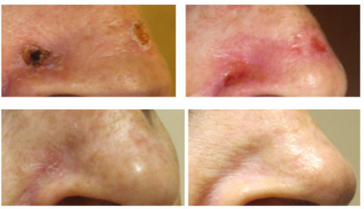 EBT Treatment of Basal Cell Carcinoma. Photo at pretreatment (top left), prior to fraction 7 of 8 (top right), at one-month follow up (bottom left), and at six months of follow up (bottom right).