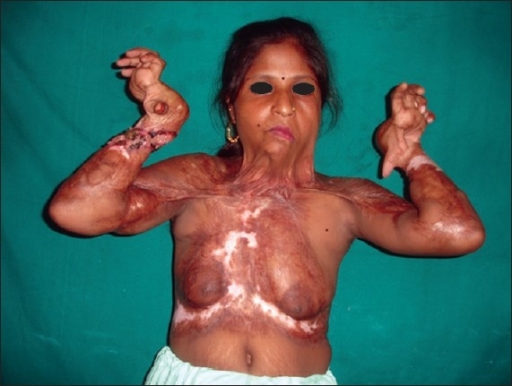 dystrophy muscular Adult