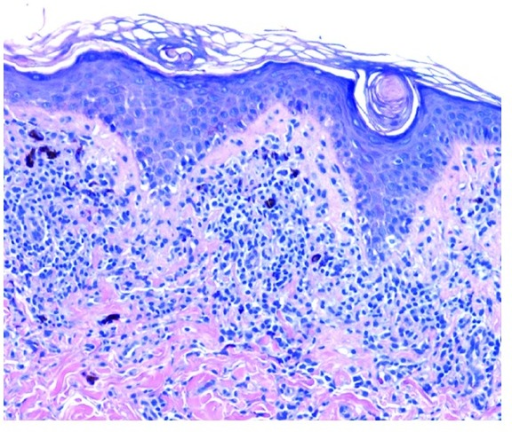Lichen planus: there is a band-like infiltrate of lymphocytes at the epidermal-dermal junction with damage to the basal cell layer and pigment incontinence. The epidermis has a saw-toothed appearance (hematoxylin-eosin, original magnification ×200).