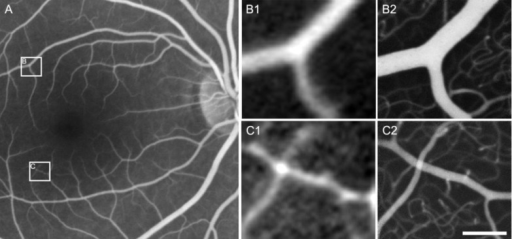 Conventional SLO FA image (A) taken 20 minutes after oral administration of 20 mg/kg fluorescein, with two areas of interest (A insets B and C) approximately 5° from the fovea. These same areas were magnified and contrast stretched (B1 and C1) for comparison with AOSLO FA images of the corresponding areas (B2 and C2), collected 30 minutes after oral fluorescein administration. The scale bar represents 100 µm and applies to all images other than image A.