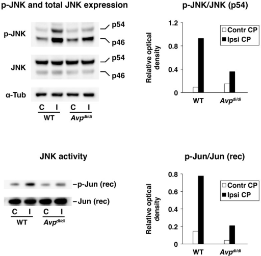 Post-traumatic activation of JNK in the lateral ventricle choroid plexus (CP) as assessed by Western blotting and JNK activity assays at 6 h after injury.A comparison of AVP-deficient Brattleboro rats (Avpdi/di) with their parental Long-Evans strain (WT). The activity of JNK was assessed in both the ipsilateral (Ipsi CP/I) and contralateral (Contr CP/C) CPs. For Western blotting, 40 µg of total protein per lane was loaded. In non-radioactive JNK activity assays, 200 ng of recombinant (rec) human c-Jun protein was used as a substrate for JNK. Similar results were obtained in an independent experiment involving separate groups of animals. The ratios of optical density of bands for phosphorylated proteins over the optical density of bands for the total (phosphorylated and non-phosphorylated) proteins are shown (n = 4 per group).
