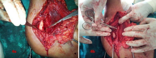 Lipoma excised. (a) Undocking the periosteal's attachment. (b) Preserving the radial nerve.
