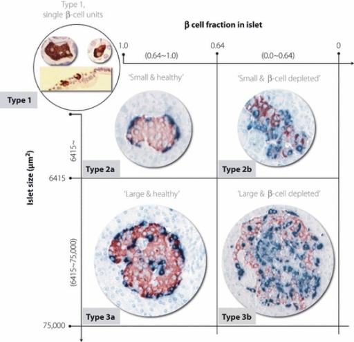Islet classification according to islet size and β‐cell fraction in the islet: type 1, single β‐cell units or scattered β‐cells; type 2a, small healthy islets; type 2b, small β‐cell‐depleted islets; type 3a, large healthy islets; type 3b, large β‐cell‐depleted islets.
