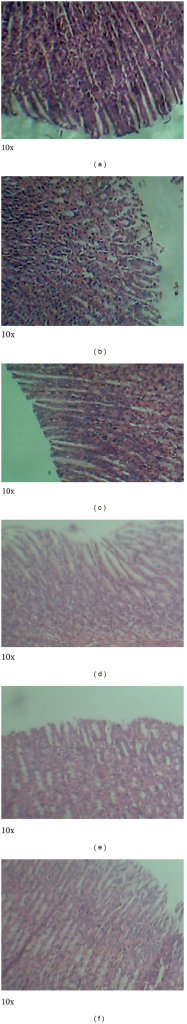 Photomicrographs of the stomach from male Sprague-Dawley rats. No observable ulceration. The epithelial cells are intact. Keys: (a): control, (b): 5000 mg/kg bwt, (c): 1000 mg/kg bwt, (d): 200 mg/kg bwt, (e): 80 mg/kg bwt, and (f): 40 mg/kg bwt.
