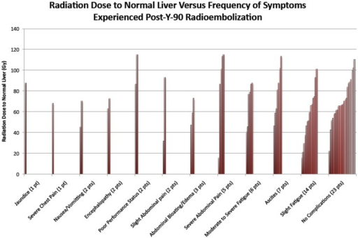 The figure above indicates the symptoms experienced after 90Y radioembolization for the 56 cases evaluated in this study. Patients in certain cases had multiple complications. Complications reported were those that had occurred within 2 months of procedure.