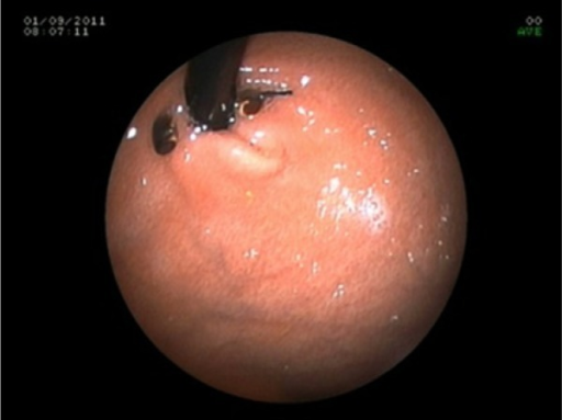 Patient 8's 12-month follow-up endoscopy using a 6-mm endoscope.