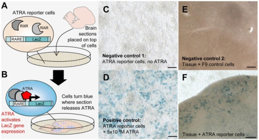 ATRA mapping in brain sections through a reporter cell assay.A and B: Schematic overview of ATRA reporter cell assay. A: Reporter cells (they contain a LacZ gene under a retinoic acid response element, or RARE, and express retinoic acid and retinoid X receptors - RAR/RXRs - needed for ATRA induced gene expression) are seeded onto a Petri dish; a freshly cut brain section is placed into the dish and attaches to the cell monolayer. B: ATRA locally generated in the brain slice reaches a reporter cell, binds to RAR/RXR complexes and causes LacZ expression, revealed as blue label by LacZ/X-gal staining. C and D: LacZ expression in reporter cells is specifically induced by ATRA. C (negative control 1): In the absence of ATRA, reporter cells are LacZ-negative and do not turn blue upon LacZ/X-gal staining. D (positive control): Labeling is generated when ATRA is added to the medium. E (negative control 2): A slice co-cultured with an F9 cell line without RARE and LacZ does not generate blue signal upon LacZ/X-gal staining. F: A slice from an adult male bird co-cultured with reporter cells results in blue labeling in regions where ATRA is present. Blue labeling is seen under song nucleus HVC, which expresses zRalDH, but not in cells without overlying tissue (top), or in cells that underlie a part of the tissue that does not contain ATRA (bottom). Photos in C–F were taken through the bottom of the Petri dish. Scale bars: for C, D  = 200µm; for E, F = 100µm.