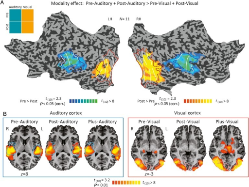 Consistent sensory preference in sensory areas. (A) Statistical parametric map of the modality effect revealed by a two-way ANOVA, vision versus auditory preference (P < 0.05, corr.), is presented on a flattened cortical reconstruction of one of the subjects. The analysis was carried out within areas that were responsive to either vision or auditory, before or after learning SSA. Auditory and visual responses are distinct and localized in accordance with their respective sensory areas, as defined by retinotopic (red) and tonotopic blue) borders. This was enabled even though the auditory and visual stimuli were delivered at the same time, in a semioverlapped manner (see Methods). White lines delineate group average of borders between tonotopic and retinotopic gradients. (B) Auditory responses in the auditory cortex (blue box, left) and visual responses in the visual cortex (red box, right) in all 3 experimental conditions (Pre, Post, and Plus, in left to right panels), compared with baseline. Auditory responses in auditory cortex were always positive (P < 0.01, uncorrected), as were the visual responses in the visual cortex (P < 0.01, uncorrected), also demonstrated by beta values in Figure 2B. Here, as well tonotopic borders are in blue and retinotopic borders are depicted in red.