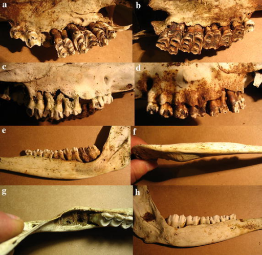 Case 3, a female 5–7 years old. a Erosions of the palate along the molars and of alveolar pockets. b Erosions and perforations of the palate. c Severe erosion of the right maxilla exposing molar roots, and perforations exposing premolar roots, similar to the left buccal side (d). e Advanced erosion and perforations at the level of molars, and a reduced jaw height. f, g Eroded alveolar pockets, missing molars, and mandibular thickening. h Erosions and reduced of mandibular height.