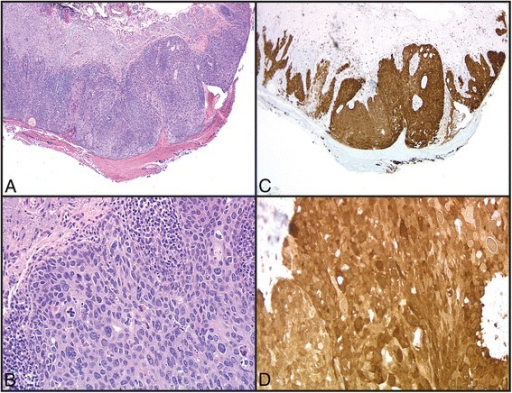 a, b Histology of a squamous cell carcinoma in situ from eyelid biopsy (4x and 20x, respectively). c, d Immunohistochemical staining for p16 in the same case (4x and 20x, respectively). Note the extensive cytoplasmic and nuclear reactivity