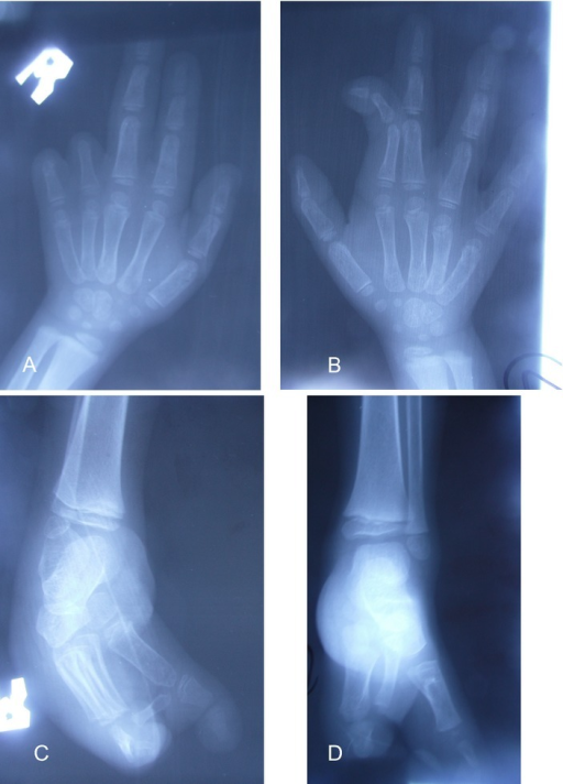 (A) X-ray of right hand demonstrating absence of middle and distal phalanges of digits 4 and 5; (B) x-ray of left hand shows cutaneous syndactyly of digits 2 and 3; (C) split right foot with missing metatarsal bones; (D) split left foot with malformed metacarpal bones and left congenital talipes equinovarus.