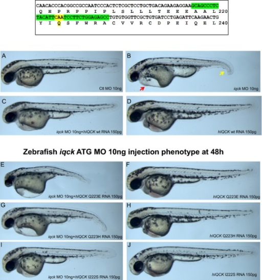Box shows location of missense mutation in IQCK; (A) control morpholino phenotype at 48 h in zebrafish is normal; (B) iqck morpholino at 48 h shows cardiac edema (red arrow) and ventral fin hypoplasia (yellow arrow); (C) coinjection of iqck morpholino and IQCK (hIQCK) mRNA shows rescued phenotype; (D) control human IQCK injection results in normal phenotype; (E) coinjection of iqck morpholino and human Q223E human IQCK mRNA resulting in worsening of phenotype than iqck morpholino alone shown in Figure6B; (F) human Q223E IQCK mRNA injection shows normal phenotype; (G) coinjection of iqck morpholino and human Q223H human IQCK mRNA resulting failure to rescue phenotype; (H) human Q223H IQCK mRNA injection shows normal phenotype; (I) coinjection of iqck morpholino and human Q222S human IQCK mRNA resulting in a rescued phenotype; (J) human Q222S IQCK mRNA injection shows normal phenotype.