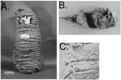 Pre-Columbian Andean mummy in this study (Panel A), distended colon with paleofeces (Panel B), and Trypanosoma cruzi amastigotes (Panel C).