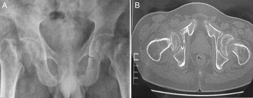(A) Frontal pelvic radiograph showing generalized osteopenia, and bilateral impacted subcapital fractures of the femoral neck with coxa vara deformity. (B) Axial non-contrast CT scan of pelvis at the level of hip joint showing bilateral impacted fractures of the femoral neck and fracture of the left quadrilateral plate of acetabulum.