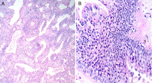(A) Microscopically, the tumor composed of cells arranged in sheets in a hyalinized stroma and multiple stag horn-shaped blood vessels lined by flat endothelial cells within the mass (hematoxylin and eosin, ×100). (B) Photomicrograph showing round to oval cells with minimal pleomorphism/mitotic activity, nuclei are vesicular with the presence of prominent small nucleoli in a hyalinized stroma; part of respiratory epithelium with pseudostratified ciliated columnar cells also present (hematoxylin and eosin, ×400).