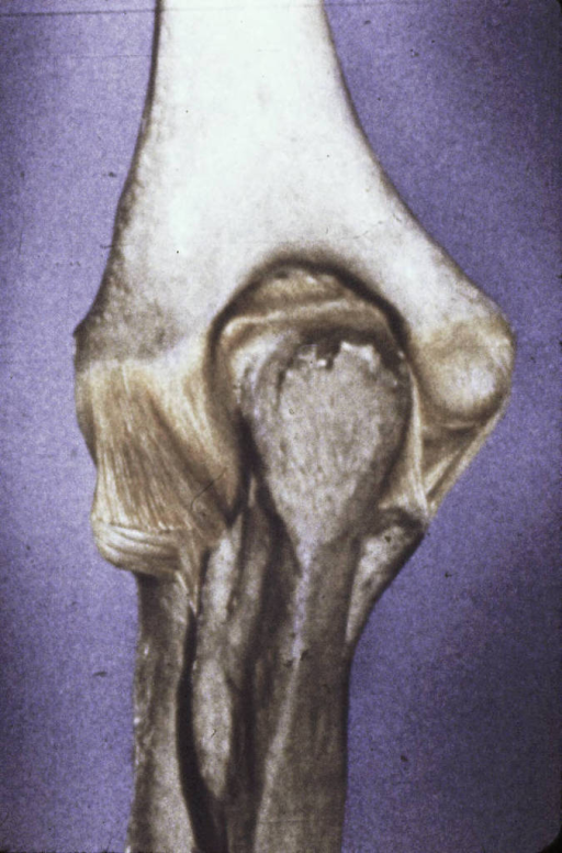 humerus; medial epicondyle of humerus; lateral epicondyle of humerus; olecranon fossa; ulna; radius