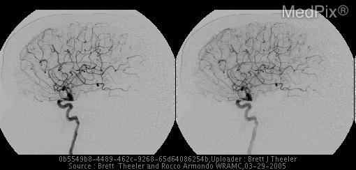 Selective R internal carotid artery injection.  There is no filling of the fistula on these early arterial phase images.