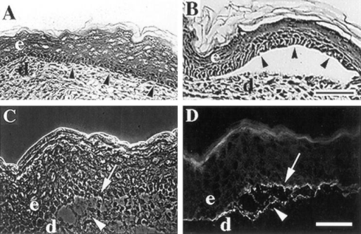 α3- mice form  skin blisters. (A and B) Frozen skin sections from wildtype (A) or α3- (B) mice  were stained with hematoxylin and eosin and the epidermal-dermal junctions were  compared. Arrowheads point  to basal keratinocytes of the  epidermis. (C and D) A frozen skin section from an α3 mouse showing a blister  viewed by phase contrast  (C) or stained by immunofluorescence with an antiserum  against laminin-5 (D). Arrowheads and arrows point  to areas of laminin-5 staining  at the dermal and epidermal  sides of the blister, respectively. e, epidermis; d, dermis. Bars, 50 μm.