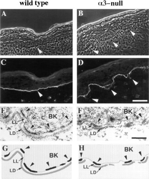 The basement membrane in α3-  skin is disorganized. (A–D) Frozen skin sections from wild-type (A and C) or α3- (B  and D) mice were viewed by phase contrast  (A and B) or stained by immunofluorescence  with an antiserum against laminin-5 (C and  D). Arrowheads point to areas of laminin-5  staining at the basement membrane in the  wild-type skin (A and C) or at regions of disorganized basement membrane in α3-  skin (B and D). (E and F) Electron micrographs comparing ultrastructure of the basement membrane zone in wild-type (E) and  α3- (F) skin. (G and H) Schematic illustration of relevant structures seen in E and F.  BK, basal keratinocyte; LL, lamina lucida;  LD, lamina densa; arrowheads point to  hemidesmosomes along the basal aspect of  the plasma membranes in the basal keratinocytes. Bars: (D) 50 μm; (F) 200 nm.