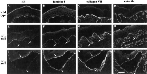 Entactin and type VII collagen codistribute with laminin-5 over regions of disorganized basement membrane and to both dermal and epidermal sides of blisters in α3- skin. Frozen sections from neonatal skin were stained by double-label immunofluorescence with GoH3 monoclonal antibody against the α6 integrin subunit and antiserum against laminin-5 (A, E, I, and B, F, J, respectively), or by immunofluorescence with antisera against type VII collagen (C, G, and K) or entactin (D, H, and L). (A–D)  Representative fields from wild-type skin. (E–H) Adjacent sections through a region of disorganized basement membrane in α3-  skin; arrows point to areas in the dermis, outside the basement membrane zone as defined by α6-staining (E) where basement membrane proteins are detected (F–H). (I–L) Adjacent sections through a blister in α3- skin; arrowheads and arrows point to the dermal  and epidermal sides of the blister, respectively. Bar, 50 μm.