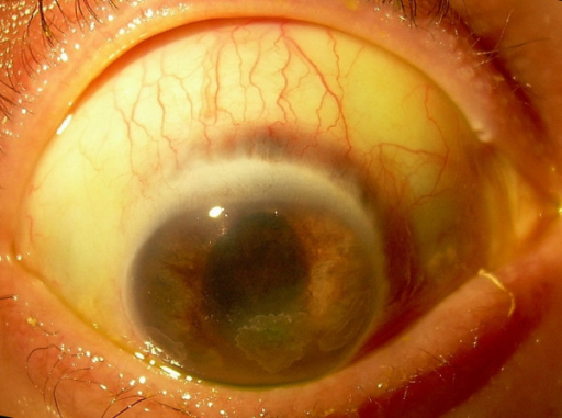 Colour photograph of the right eye indicating the initial thinning of the sclera at the superior limbus.