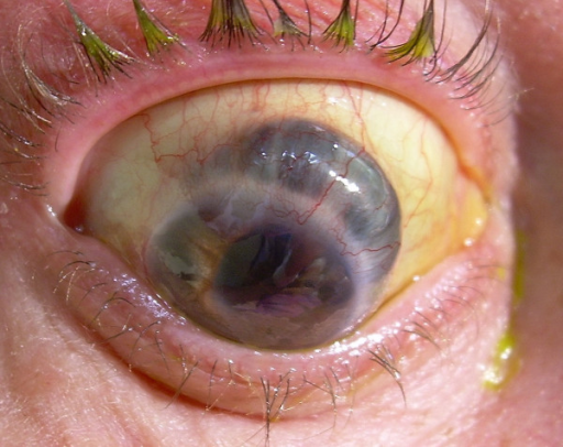 Colour photograph of the right eye showing the extensive thinning of the superior sclera and secondary anterior staphyloma formation.