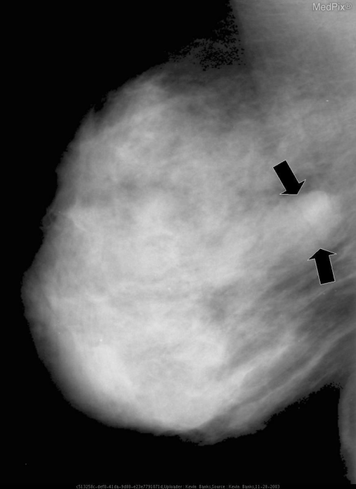 MLO view of the right breast shows a smoothly marginated mass in the mid deep breast (black arrows).
