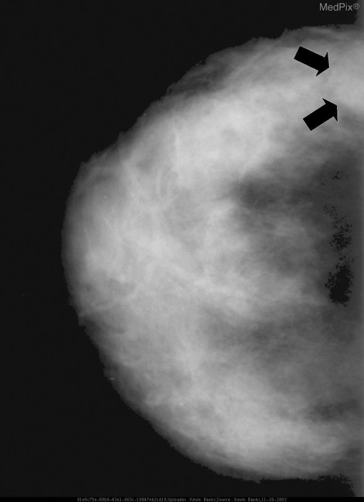 CC view of the right breast shows a smoothly marginated mass in the outer breast (black arrows).