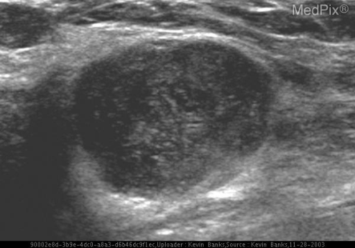 Radial US view of the right breast shows a well-circumscribed hypoechoic lesion with increased thru transmission.
