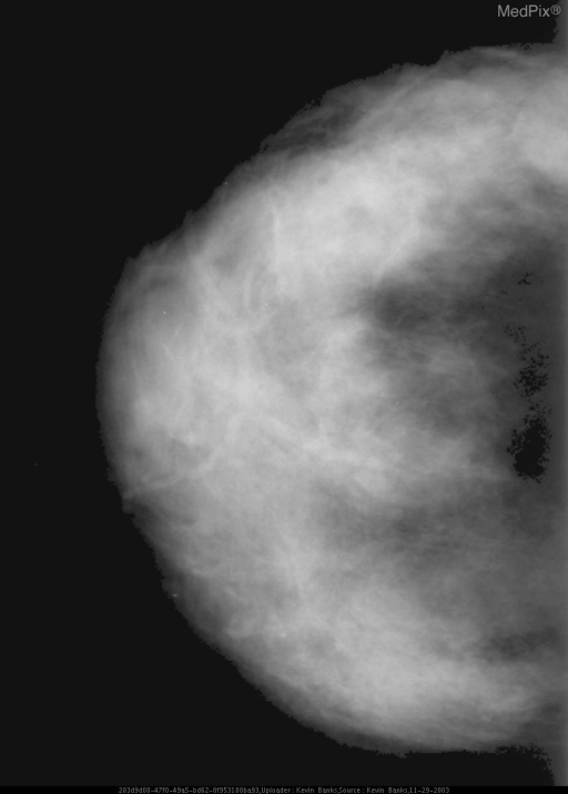 CC view of the right breast.