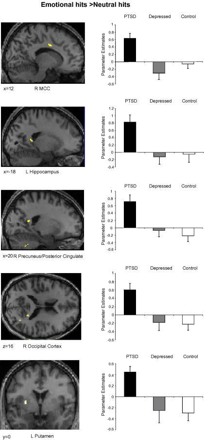 Parameter estimates (arbitrary units) for regions demonstrating additional activity in the PTSD group relative to the control and depressed groups for the emotional hit > neutral hit contrast. Statistical parametric maps thresholded at p < .001 uncorrected.
