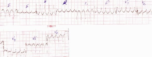 Reappearance of the same monomorphic VT