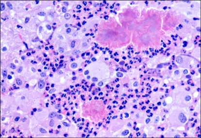 Actinobacillar pyogranuloma. Bacterial colonies are surrounded by eosinophilic club-like bodies, neutrophils, and large macrophages. H&E stain, ×400.