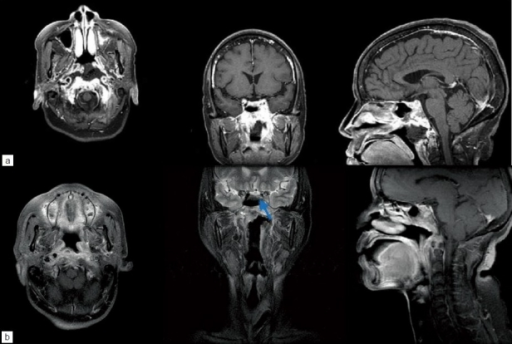 (a) MRI scan of sella. Preoperative axial, coronal and sagittal images after intravenous administration of gadolinium diethylenetriamine penta-acetic acid are shown. Thickening of the nasopharyngeal wall with irregular contrast enhancement is seen. Ill-defined enhancement over the skull base including the clivus, bilateral petrosal apex and condylar process of the occipital bone is also seen. Prominent enhancement over the left cavernous sinus and left parasellar region can also been seen. (b) Two months postoperative axial, coronal, and sagittal postgadolinium images show improvement. Residual left sixth nerve palsy was presented after the surgery, while other cranial neurolopathies improved. There were some residual abscesses in the left cavernous sinus and parasellar region (arrow)