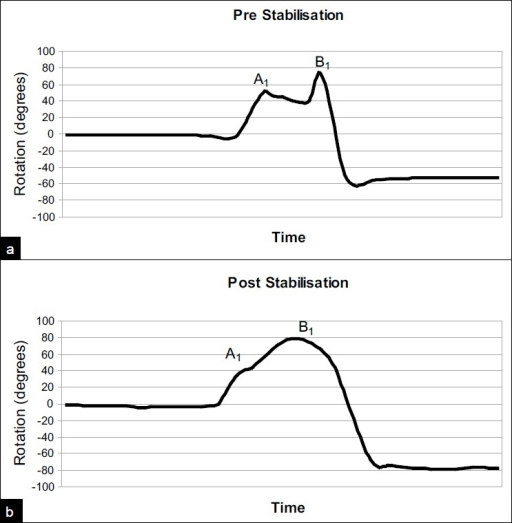 Fastrack analysis of shoulder rotation in 90° abduction in one patient (a) pre and (b) post operatively. The patient was asked to rotate from neutral to full external rotation (positive degrees) to full internal rotation (negative degrees). Point A1 shows the start of apprehension and B1 the limit of external rotation pre-operatively. The corresponding points post-operatively are indicated (A2 and B2)